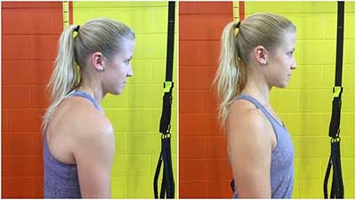 rounded-shoulders-fix