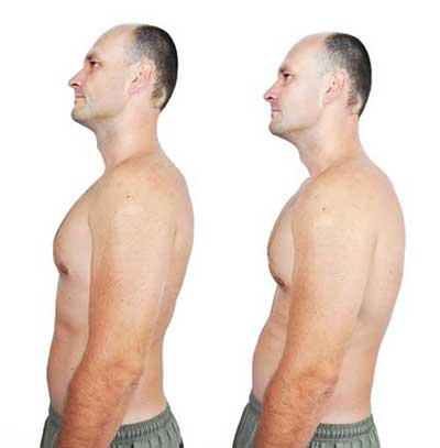 Discover How To Fix Rounded Shoulders - PostureBraceCorrector